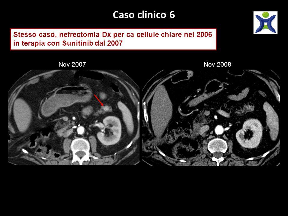 Caso clinico 6 Stesso caso, nefrectomia Dx per ca cellule chiare nel 2006 in terapia con Sunitinib dal 2007 Nov 2007Nov 2008