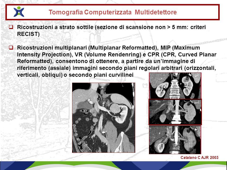 Caso clinico 1 Nefrectomia Sn nel mese di settembre 2009 per Ca renale a cellule chiare (stadio III: T2 N1 M0) Settembre 2012: comparsa di crisi epilettiche, dispnea e dolore addominale, alla TC Total Body TC Encefalo: 7 lesioni solide da 0.5 a 2 cm (alcune in sede frontale con edema perilesionale) TC Torace: multipli noduli polmonari bilaterali compatibili con secondarismi.