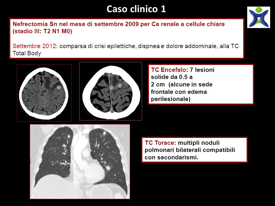 Caso clinico 1 Nefrectomia Sn nel mese di settembre 2009 per Ca renale a cellule chiare (stadio III: T2 N1 M0) Settembre 2012: comparsa di crisi epile