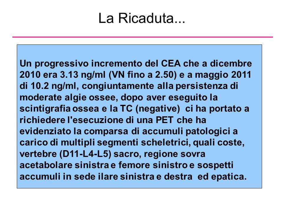 La Ricaduta...