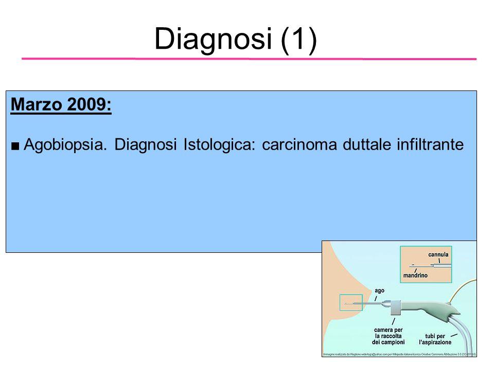 Diagnosi (2) ER+ - Profilo Immunoistochimico: G2, RE 80% RP80%; Ki67 5%; HER2 non iperespresso (-) PR+