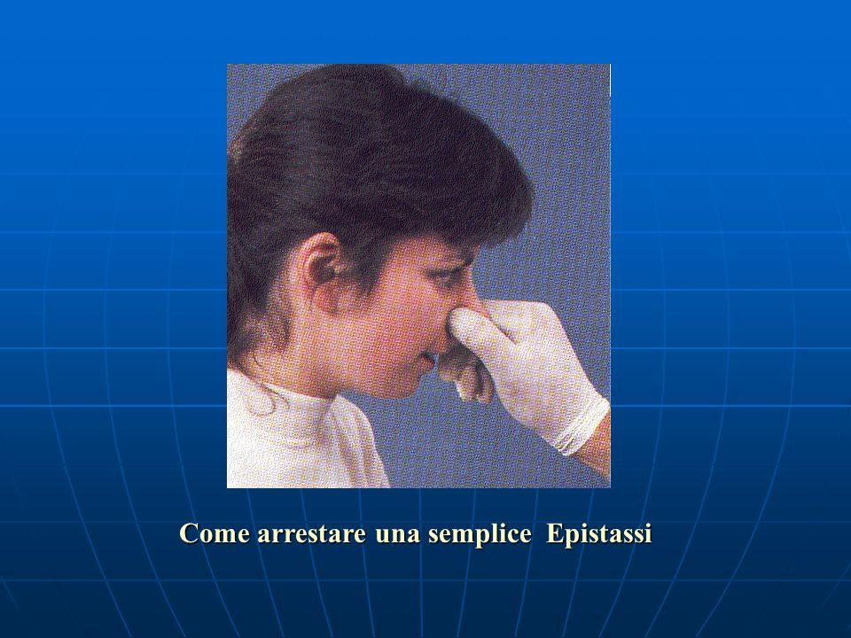 L'epistassi L'epistassi è la fuoriuscita di sangue dal naso per cause: locali (fragilità capillare, traumi) generali (ipertensione arteriosa) Il tratt