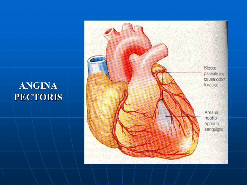 L'angina pectoris e l'infarto miocardico L'angina pectoris e l'infarto miocardico sono provocati rispettivamente da un restringimento o da un'occlusio