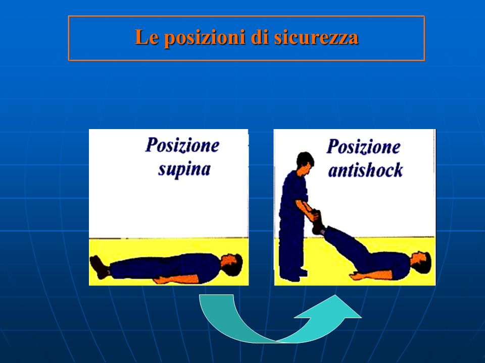insufficienza respiratoria Nel soggetto vittima di insufficienza respiratoriaincosciente si adotteranno i seguenti interventi: posizione supina assicu