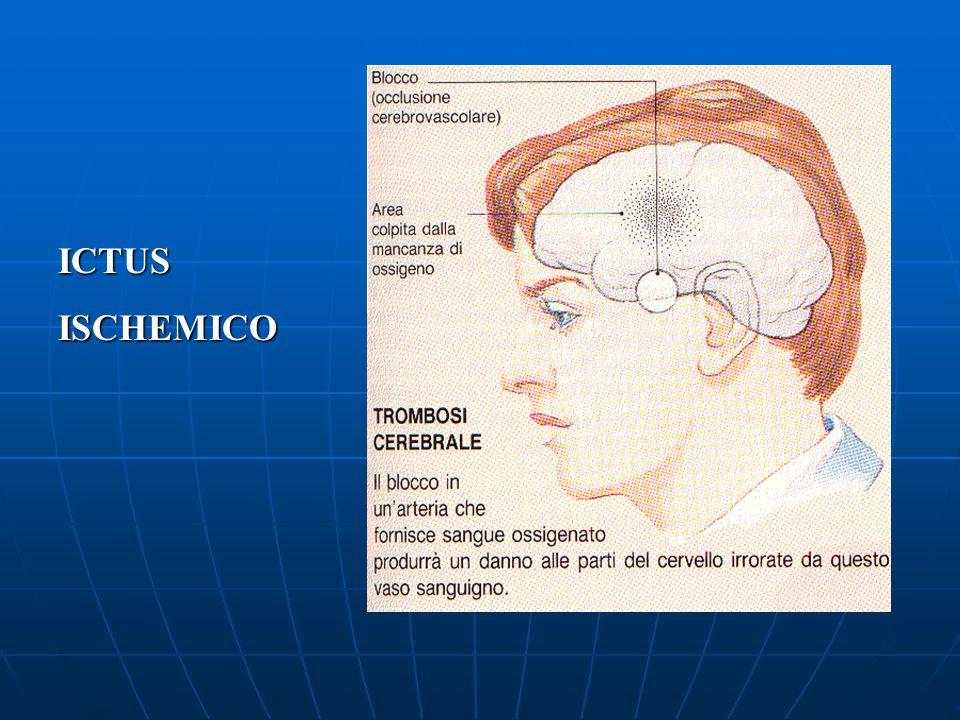 Si parla di ictus quando un'area cerebrale viene danneggiata perché privata di sangue ossigenato, per chiusura o rottura di un'arteria cerebrale, parl