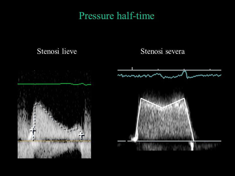 Stenosi lieveStenosi severa Pressure half-time