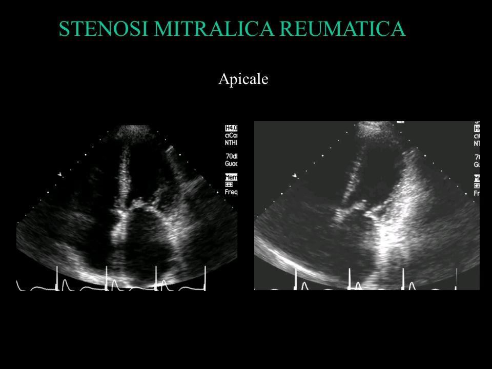 Apicale STENOSI MITRALICA REUMATICA
