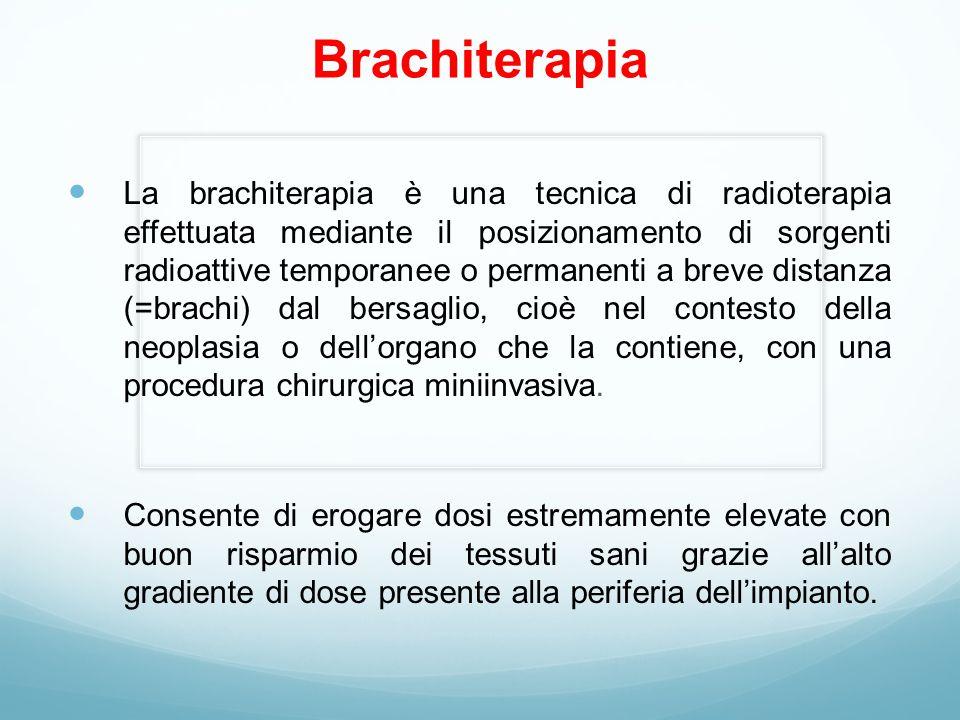 Brachiterapia La brachiterapia è una tecnica di radioterapia effettuata mediante il posizionamento di sorgenti radioattive temporanee o permanenti a breve distanza (=brachi) dal bersaglio, cioè nel contesto della neoplasia o dell'organo che la contiene, con una procedura chirurgica miniinvasiva.