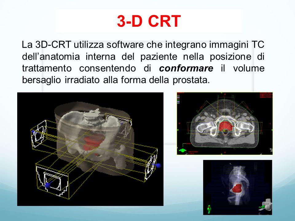 3-D CRT La 3D-CRT utilizza software che integrano immagini TC dell'anatomia interna del paziente nella posizione di trattamento consentendo di conformare il volume bersaglio irradiato alla forma della prostata.