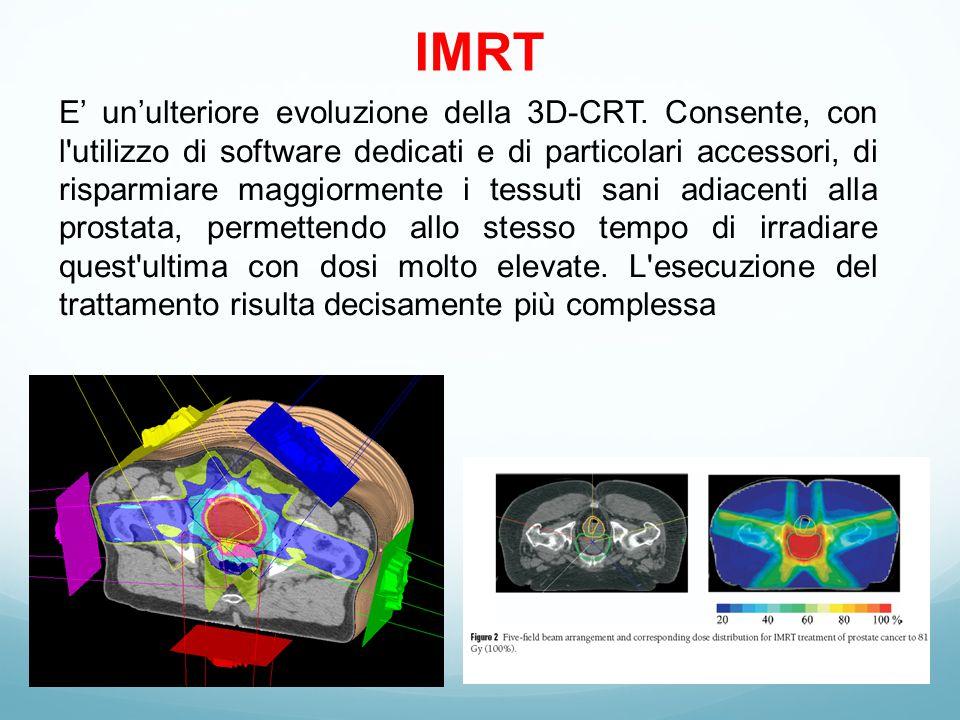 IMRT E' un'ulteriore evoluzione della 3D-CRT.