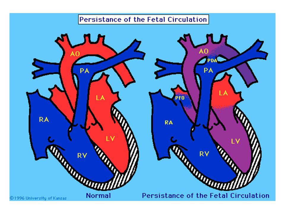 Gersony WM, et al, PFC syndrome (persistence of fetal circulation), Circulation, 40:111 1969.