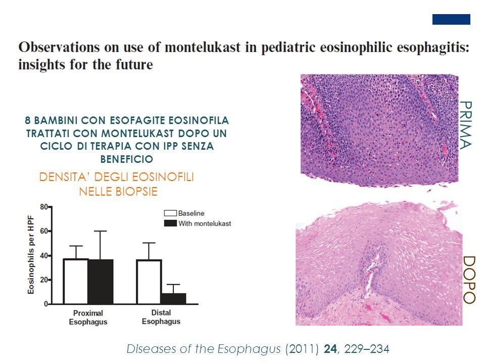 Diseases of the Esophagus (2011) 24, 229–234 8 BAMBINI CON ESOFAGITE EOSINOFILA TRATTATI CON MONTELUKAST DOPO UN CICLO DI TERAPIA CON IPP SENZA BENEFI