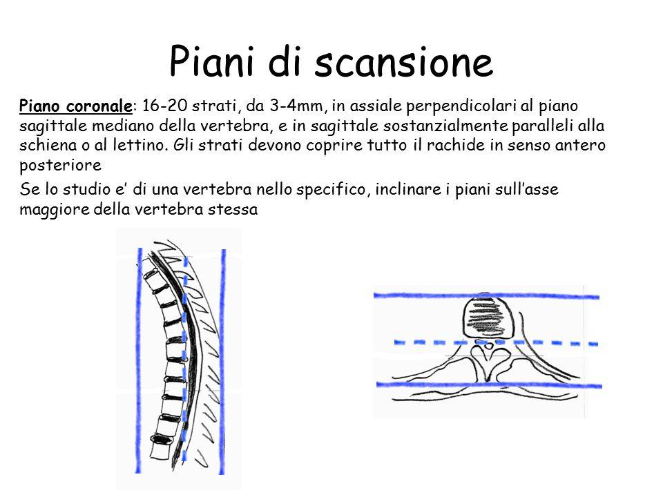 Piani di scansione Piano coronale: 16-20 strati, da 3-4mm, in assiale perpendicolari al piano sagittale mediano della vertebra, e in sagittale sostanzialmente paralleli alla schiena o al lettino.