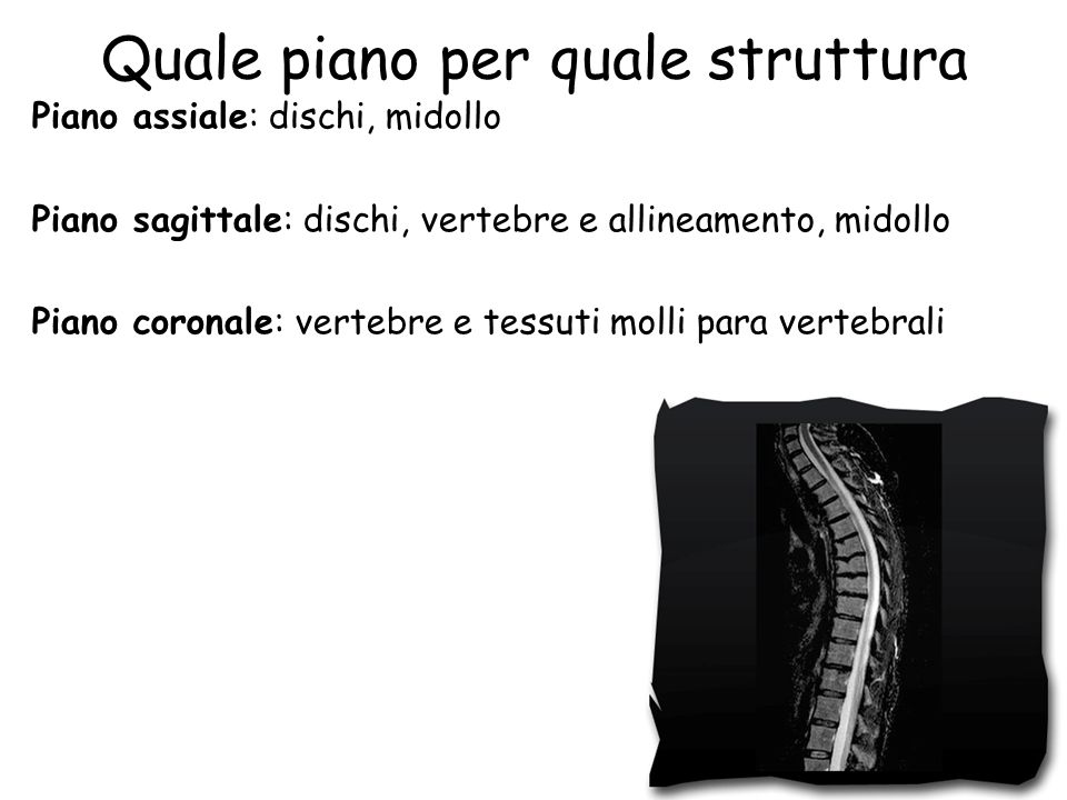 Quale piano per quale struttura Piano assiale: dischi, midollo Piano sagittale: dischi, vertebre e allineamento, midollo Piano coronale: vertebre e tessuti molli para vertebrali