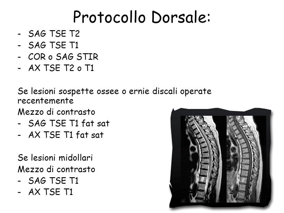 Protocollo Dorsale: -SAG TSE T2 -SAG TSE T1 -COR o SAG STIR -AX TSE T2 o T1 Se lesioni sospette ossee o ernie discali operate recentemente Mezzo di contrasto -SAG TSE T1 fat sat -AX TSE T1 fat sat Se lesioni midollari Mezzo di contrasto -SAG TSE T1 -AX TSE T1