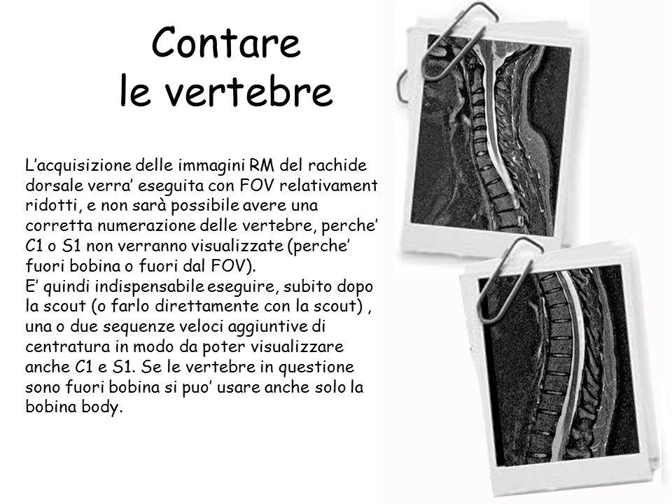 Contare le vertebre L'acquisizione delle immagini RM del rachide dorsale verra' eseguita con FOV relativamente ridotti, e non sarà possibile avere una corretta numerazione delle vertebre, perche' C1 o S1 non verranno visualizzate (perche' fuori bobina o fuori dal FOV).