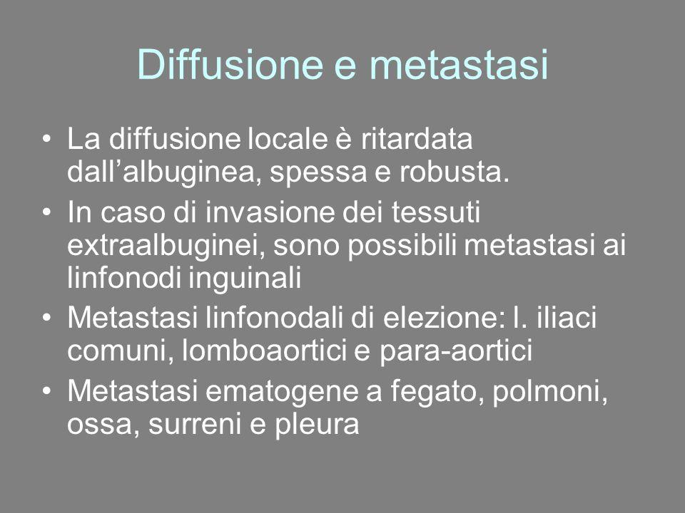 Diffusione e metastasi La diffusione locale è ritardata dall'albuginea, spessa e robusta. In caso di invasione dei tessuti extraalbuginei, sono possib