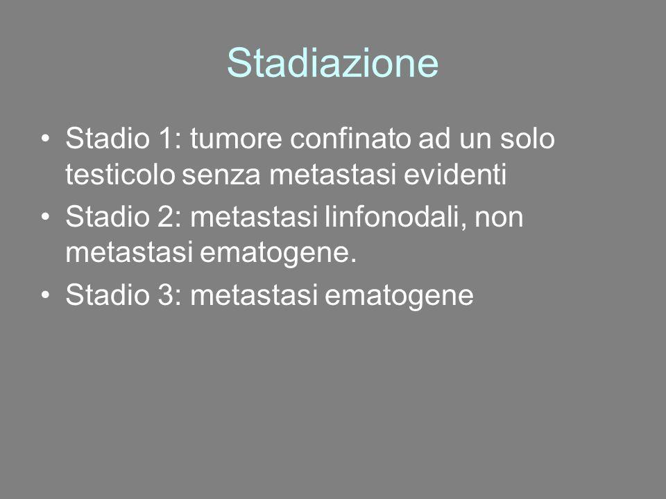 Stadiazione Stadio 1: tumore confinato ad un solo testicolo senza metastasi evidenti Stadio 2: metastasi linfonodali, non metastasi ematogene. Stadio