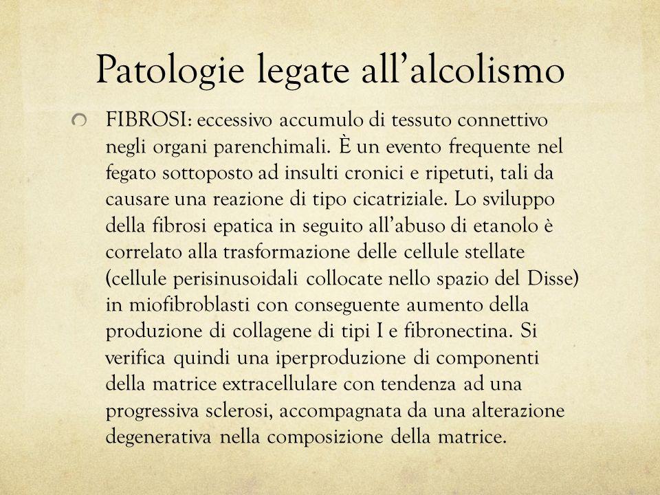 Patologie legate all'alcolismo FIBROSI: eccessivo accumulo di tessuto connettivo negli organi parenchimali. È un evento frequente nel fegato sottopost