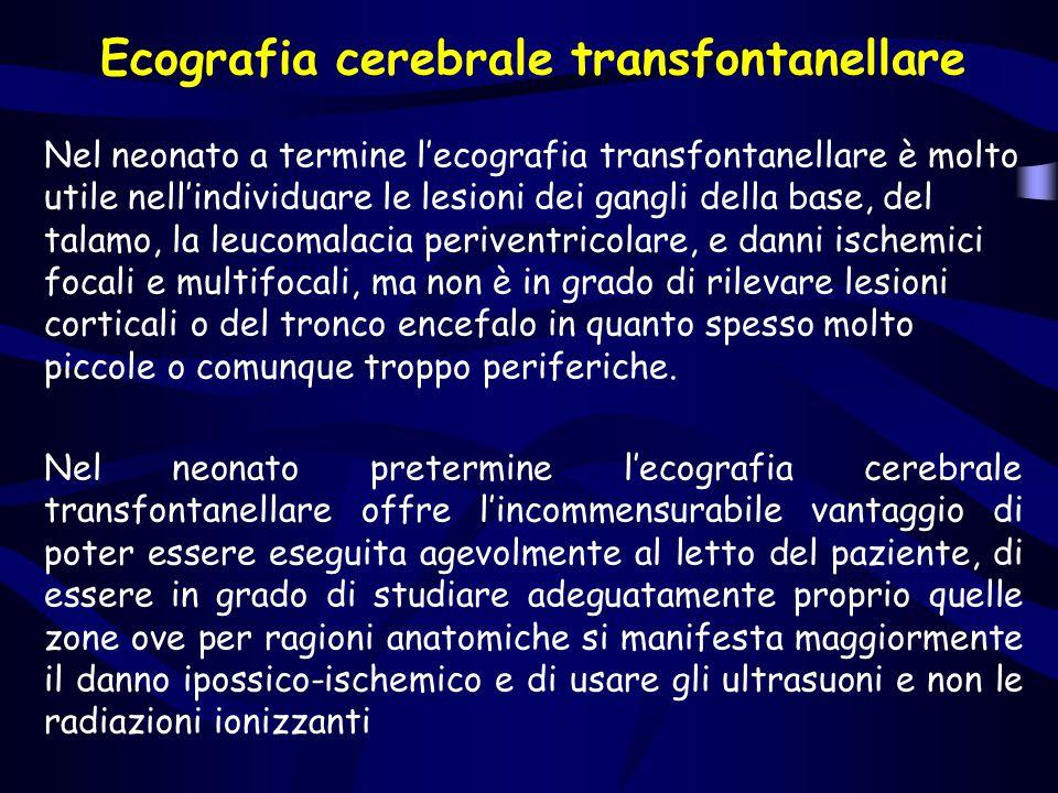 Ecografia cerebrale transfontanellare Nel neonato a termine l'ecografia transfontanellare è molto utile nell'individuare le lesioni dei gangli della b