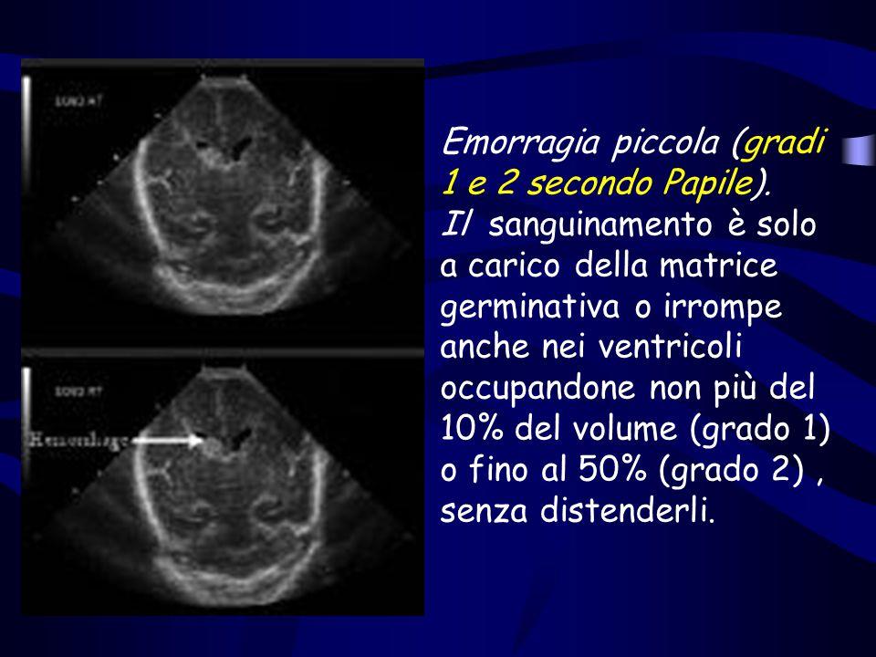 Emorragia piccola (gradi 1 e 2 secondo Papile). Il sanguinamento è solo a carico della matrice germinativa o irrompe anche nei ventricoli occupandone