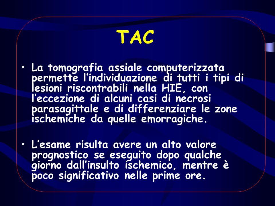TAC La tomografia assiale computerizzata permette l'individuazione di tutti i tipi di lesioni riscontrabili nella HIE, con l'eccezione di alcuni casi