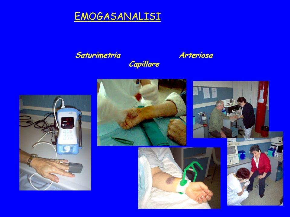EMOGASANALISI Saturimetria Arteriosa Capillare
