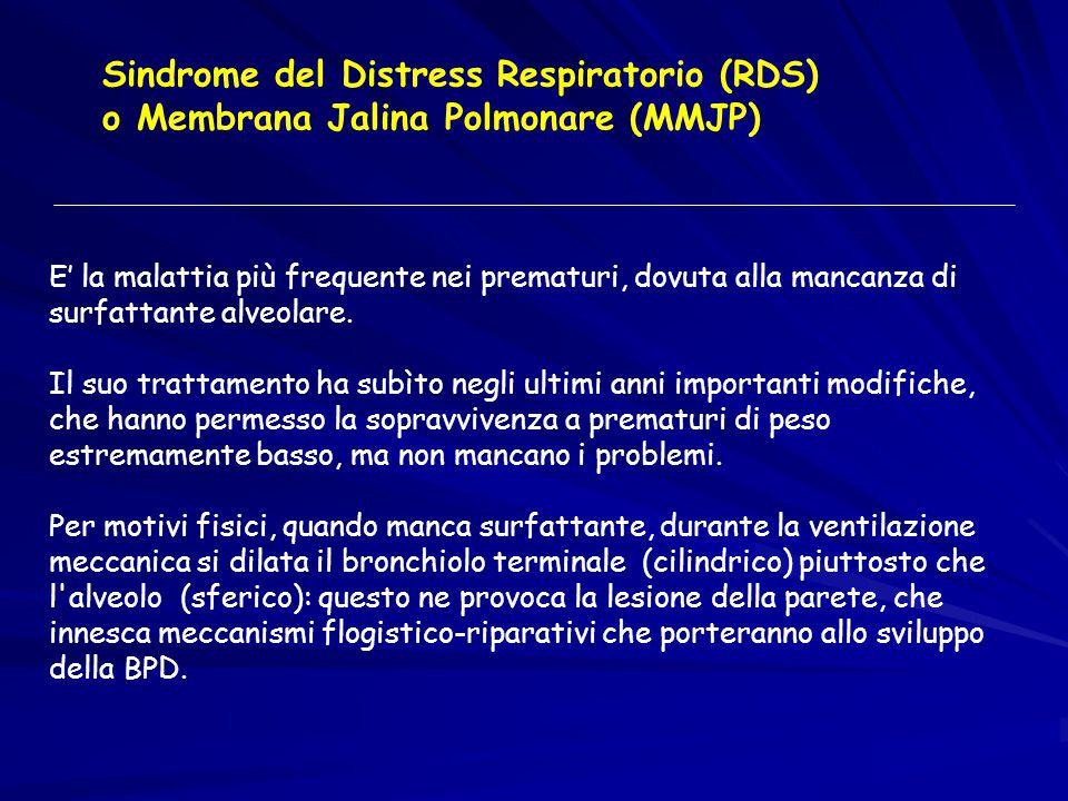 Sindrome del Distress Respiratorio (RDS) o Membrana Jalina Polmonare (MMJP) E' la malattia più frequente nei prematuri, dovuta alla mancanza di surfat