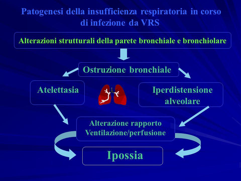 Patogenesi della insufficienza respiratoria in corso di infezione da VRS Alterazioni strutturali della parete bronchiale e bronchiolare Ostruzione bro