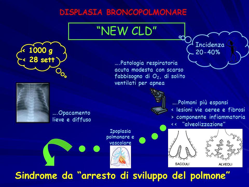 """< 1000 g < 28 sett DISPLASIA BRONCOPOLMONARE """"NEW CLD"""" ….Opacamento lieve e diffuso ….Patologia respiratoria acuta modesta con scarso fabbisogno di O"""