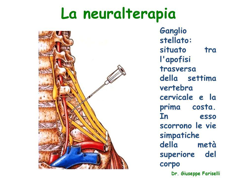 La neuralterapia Dr. Giuseppe Fariselli Ganglio stellato: situato tra l'apofisi trasversa della settima vertebra cervicale e la prima costa. In esso s