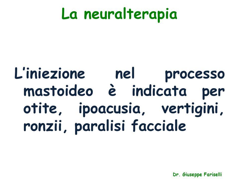 La neuralterapia Dr. Giuseppe Fariselli L'iniezione nel processo mastoideo è indicata per otite, ipoacusia, vertigini, ronzii, paralisi facciale