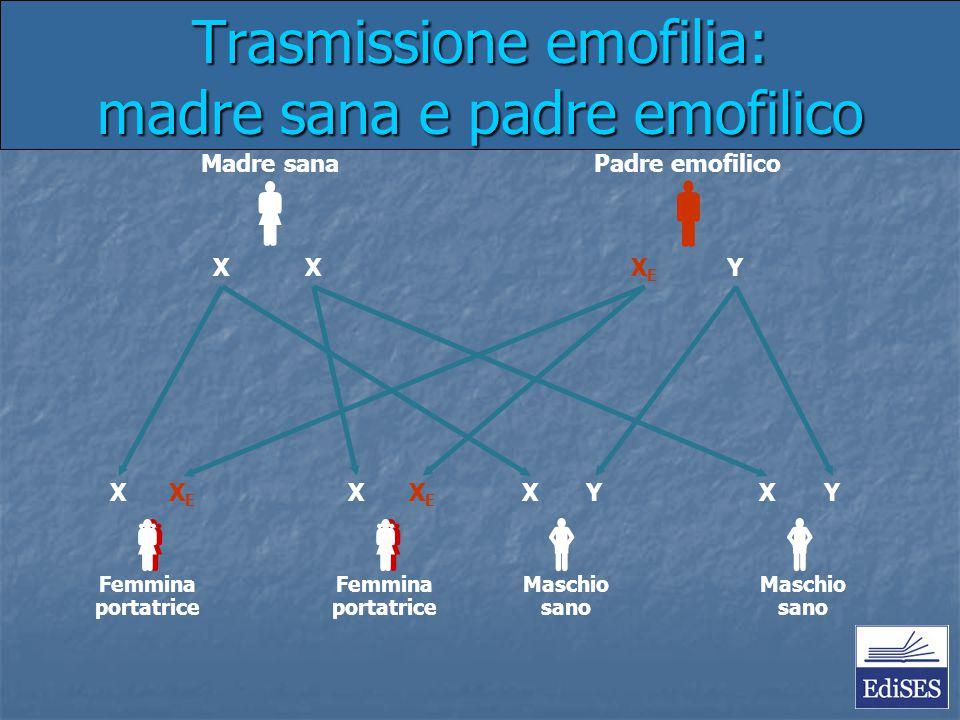 Trasmissione emofilia: madre sana e padre emofilico Madre sanaPadre emofilico Femmina portatrice Maschio sano Maschio sano  XXXEXE Y  XXEXE  XY 