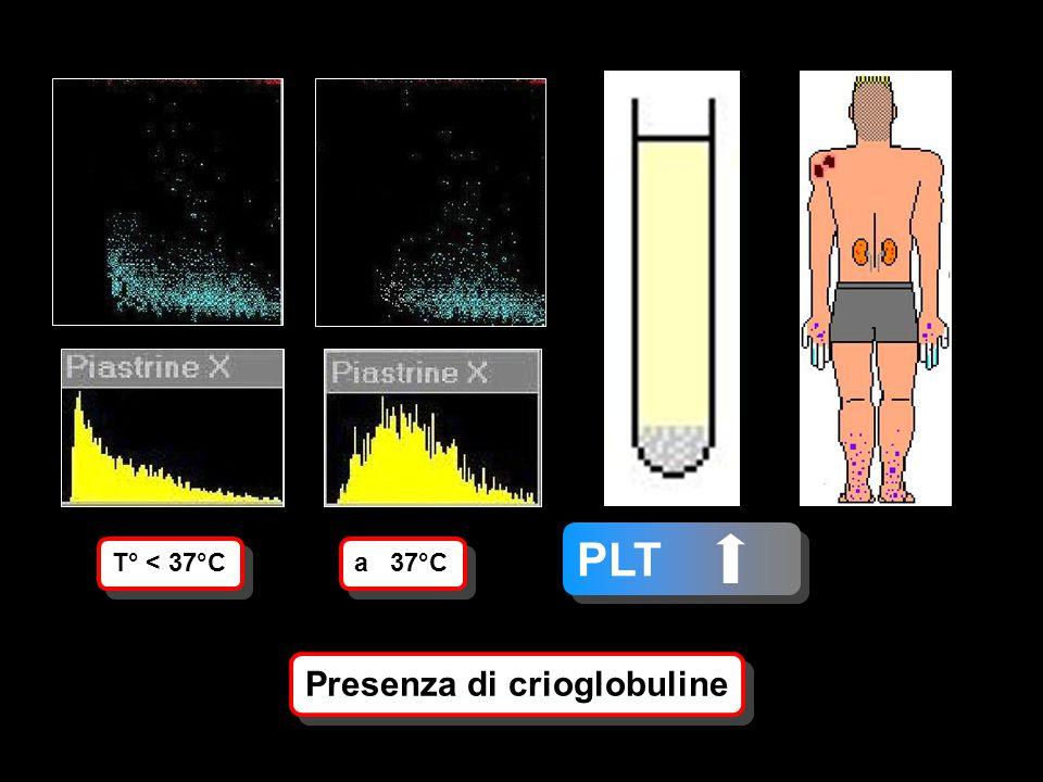 T° < 37°C a 37°C Presenza di crioglobuline PLT