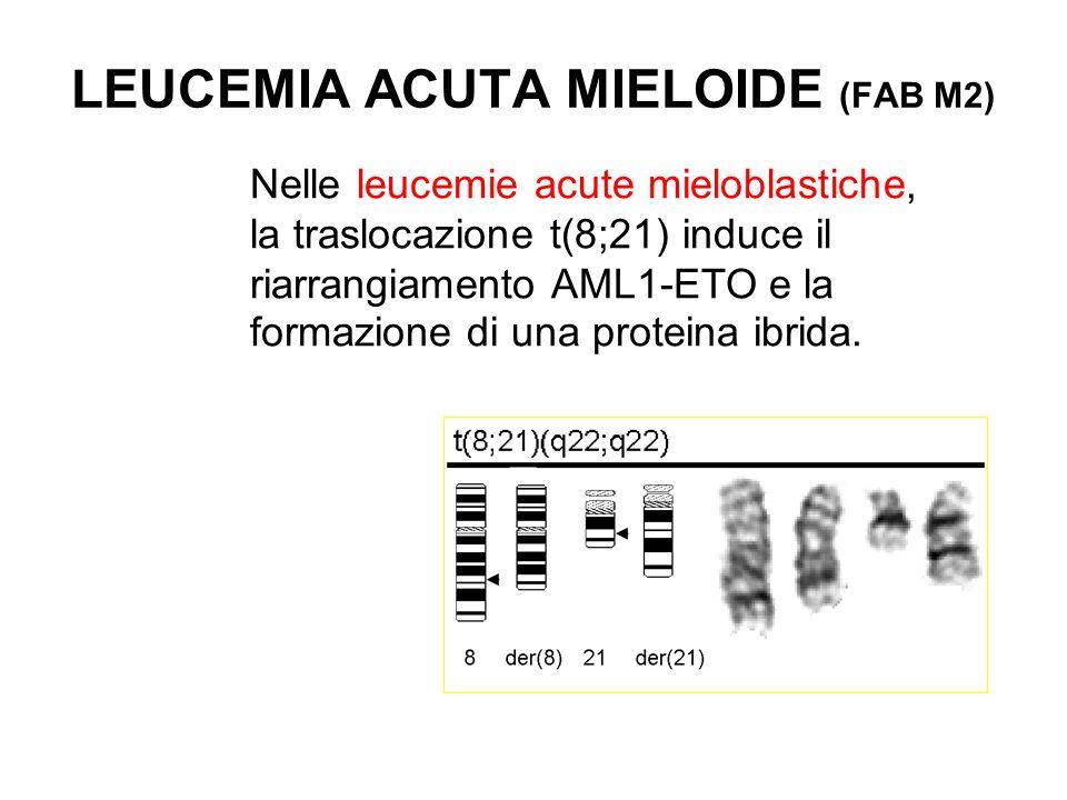 Nelle leucemie acute mieloblastiche, la traslocazione t(8;21) induce il riarrangiamento AML1-ETO e la formazione di una proteina ibrida. LEUCEMIA ACUT