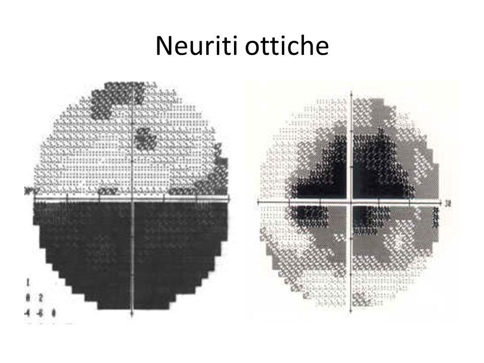 Neuriti ottiche