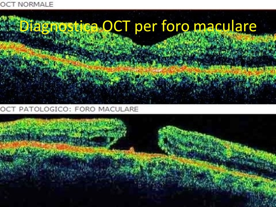 Diagnostica OCT per foro maculare