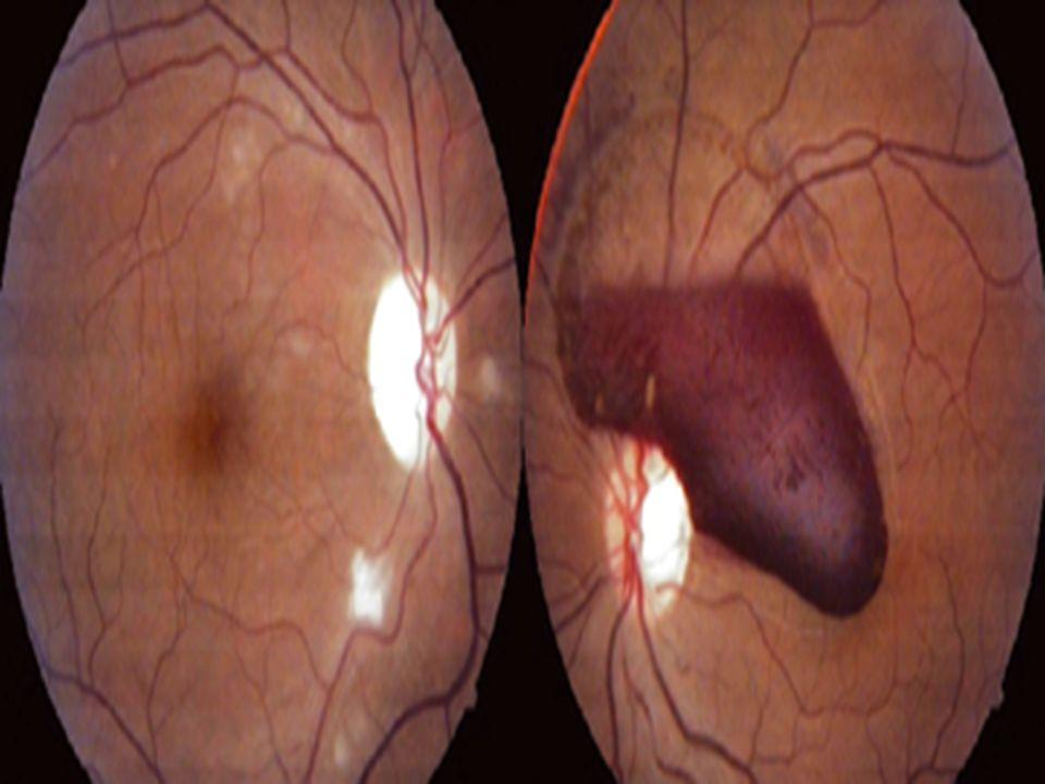 Screening per la Toxoplasmosi