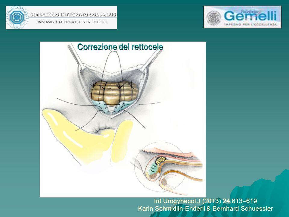 Int Urogynecol J (2013) 24:613–619 Karin Schmidlin-Enderli & Bernhard Schuessler Correzione del rettocele