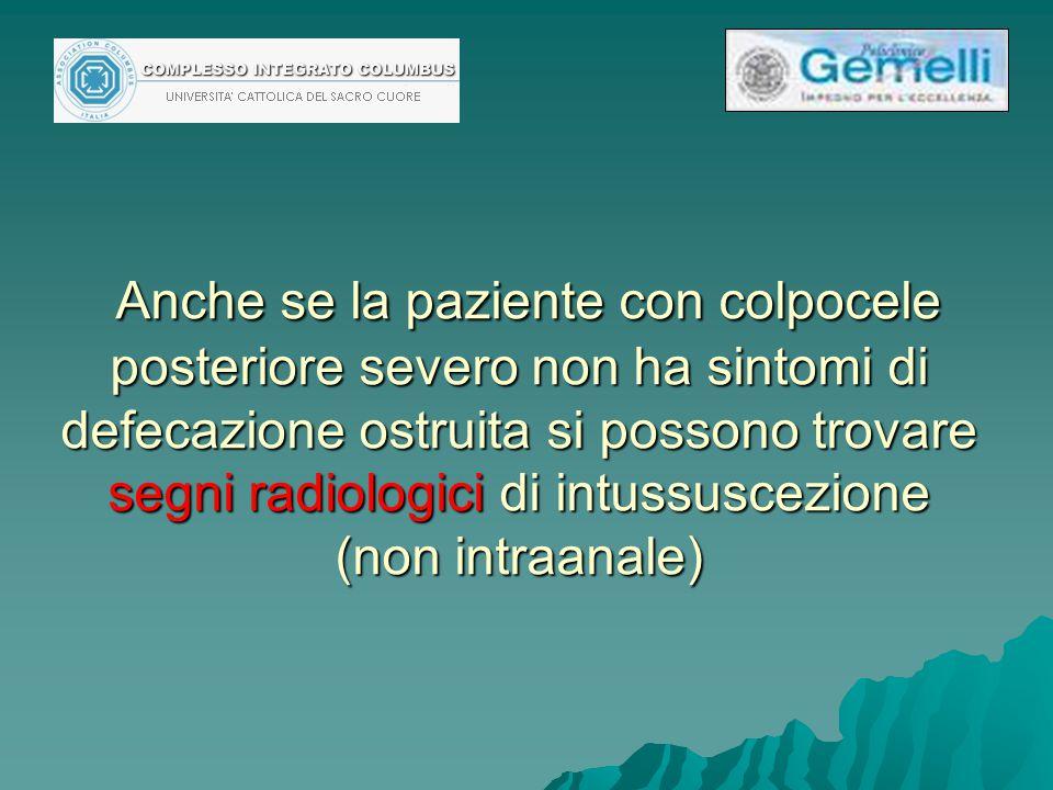 Anche se la paziente con colpocele posteriore severo non ha sintomi di defecazione ostruita si possono trovare segni radiologici di intussuscezione (n