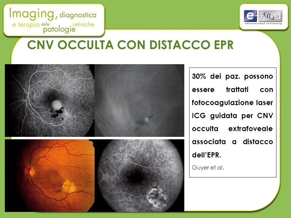 30% dei paz. possono essere trattati con fotocoagulazione laser ICG guidata per CNV occulta extrafoveale associata a distacco dell'EPR. Guyer et al. C