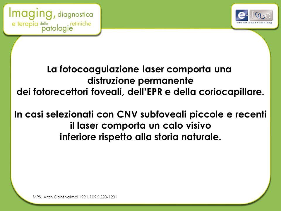 La fotocoagulazione laser comporta una distruzione permanente dei fotorecettori foveali, dell'EPR e della coriocapillare. In casi selezionati con CNV