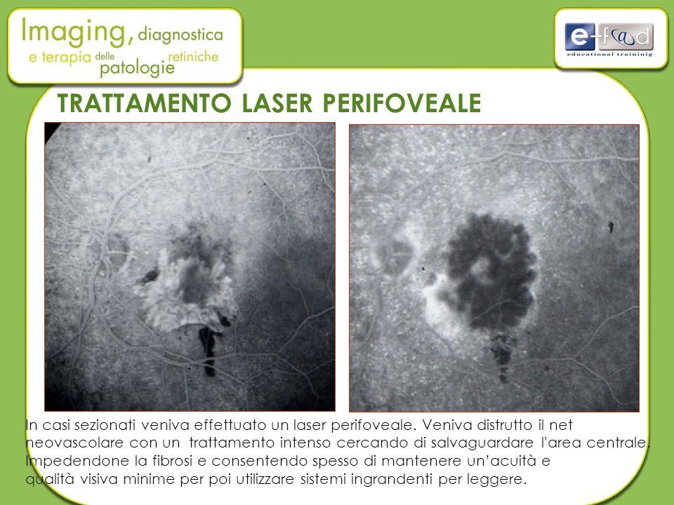 TRATTAMENTO LASER PERIFOVEALE In casi sezionati veniva effettuato un laser perifoveale. Veniva distrutto il net neovascolare con un trattamento intens