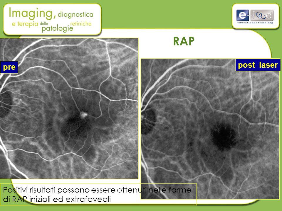 Positivi risultati possono essere ottenuti nelle forme di RAP iniziali ed extrafoveali pre post laser RAP