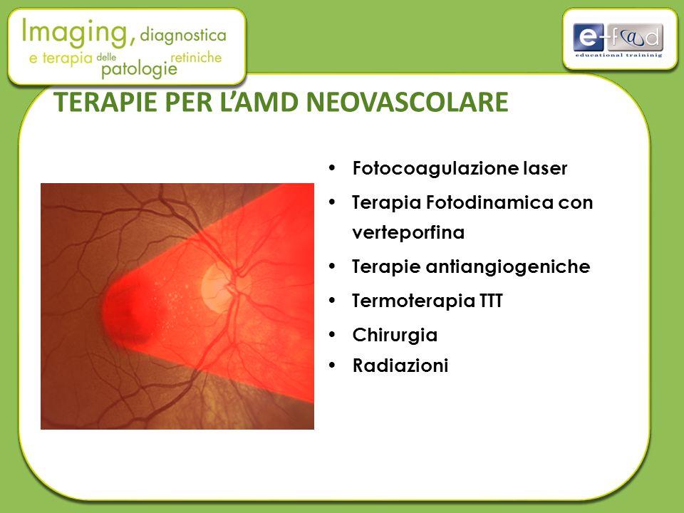 TERAPIE PER L'AMD NEOVASCOLARE Fotocoagulazione laser Terapia Fotodinamica con verteporfina Terapie antiangiogeniche Termoterapia TTT Chirurgia Radiaz