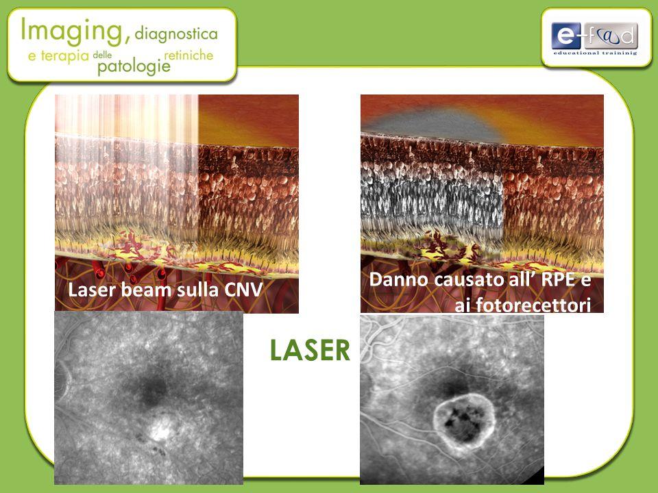 LASER Laser beam sulla CNV Danno causato all' RPE e ai fotorecettori