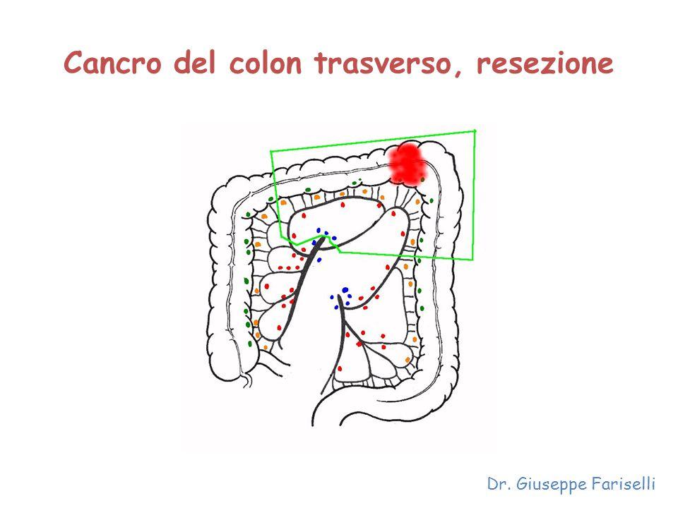 Cancro del colon trasverso, resezione Dr. Giuseppe Fariselli