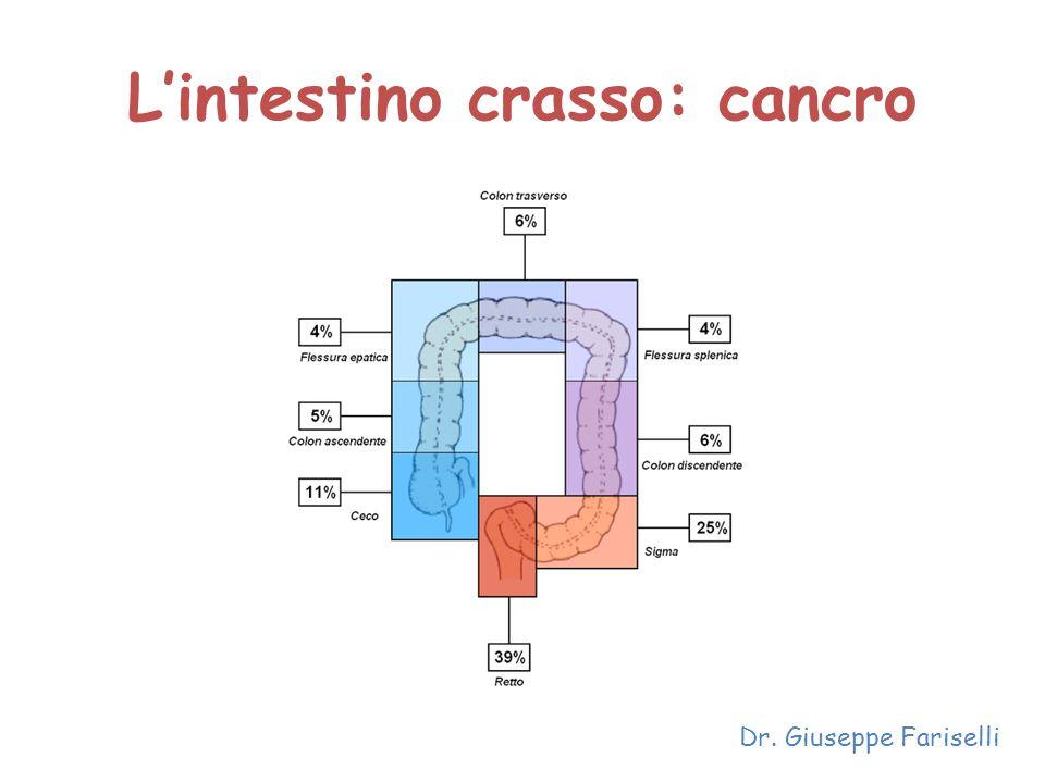 L'intestino crasso: cancro Dr. Giuseppe Fariselli