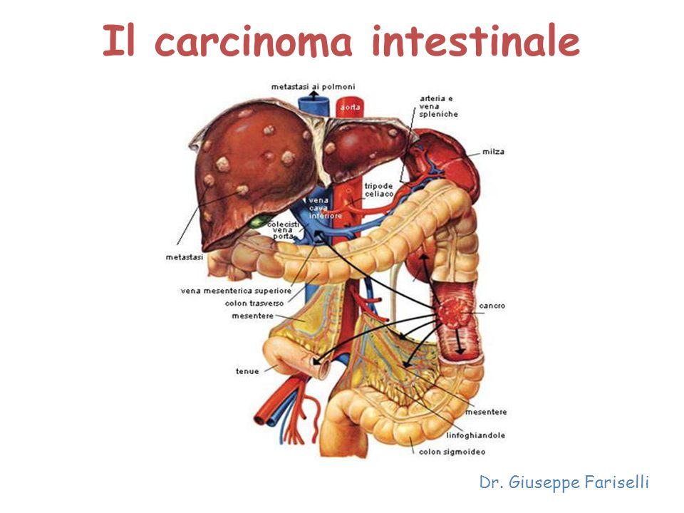 Il carcinoma intestinale Dr. Giuseppe Fariselli