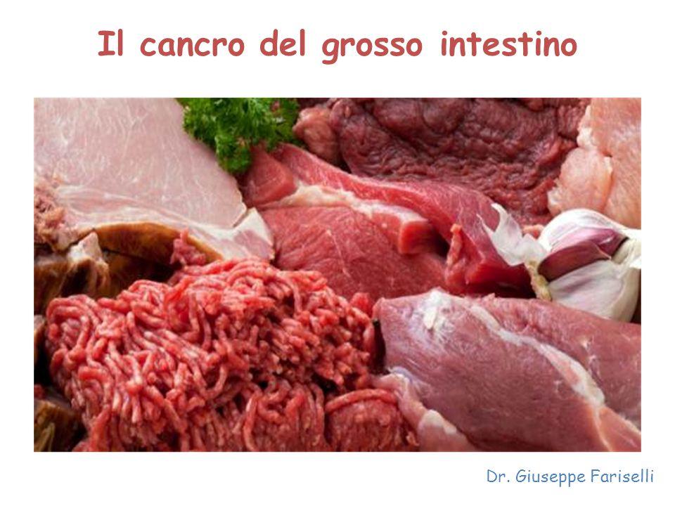 Il cancro del grosso intestino Dr. Giuseppe Fariselli